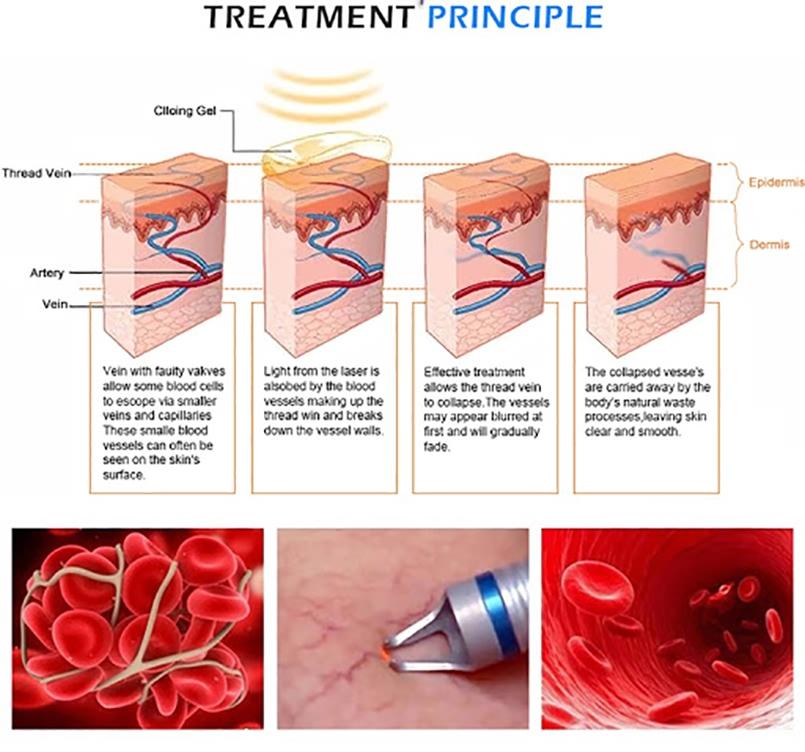 980nm diode laser spider vein removal machine is the optimum absorpt (4)