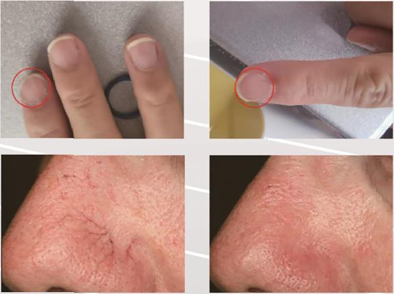 980nm diode laser spider vein removal machine is the optimum absorptio (1)
