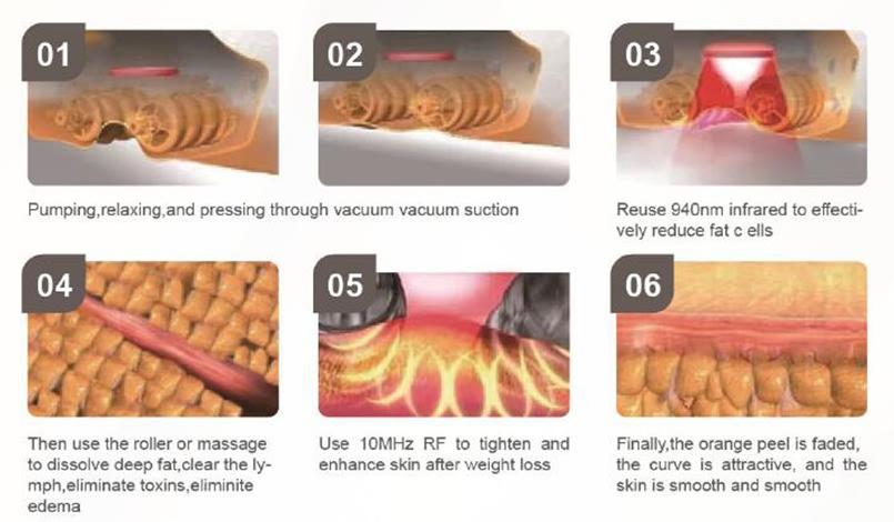 Newest Cavitation +RF+ Vacuum Slimming Machine Body Th