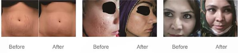Professional 10600nm Fractional CO2 Laser dental laser beauty machine acne (1)